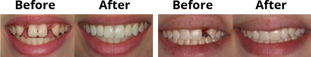 dental_implant_img
