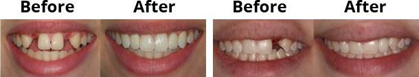 dental_implant_img