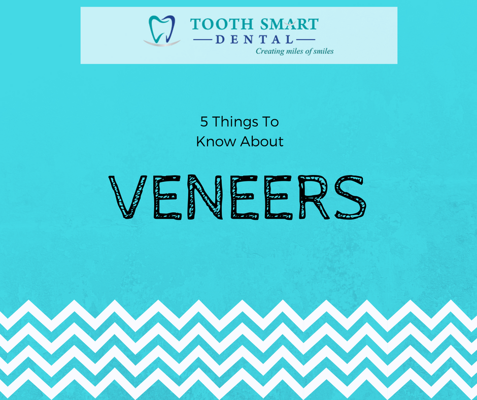 Five Things to Know About Veneers
