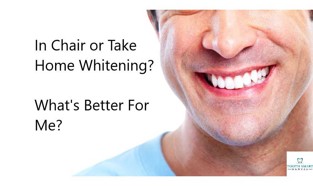 In Chair or Take Home Whitening? What's Better For Me?