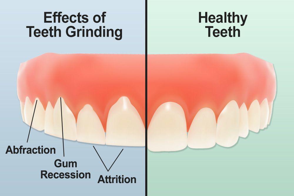 Teeth Grinding or Bruxism